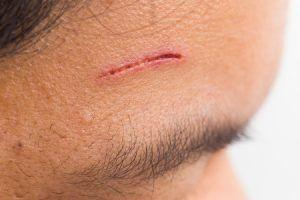 Insurance settlements for facial scar