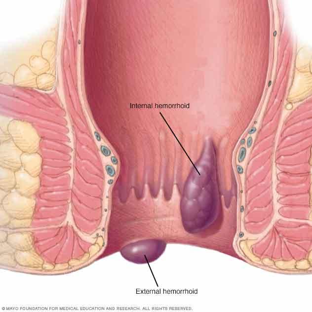 Ache just inside anus