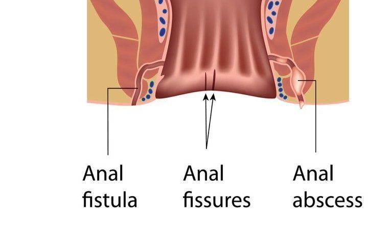 Crohns disease and anal fissures